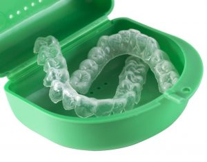 The Importance of an Orthodontic Mouthguard